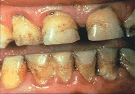 Зъби на пушач
